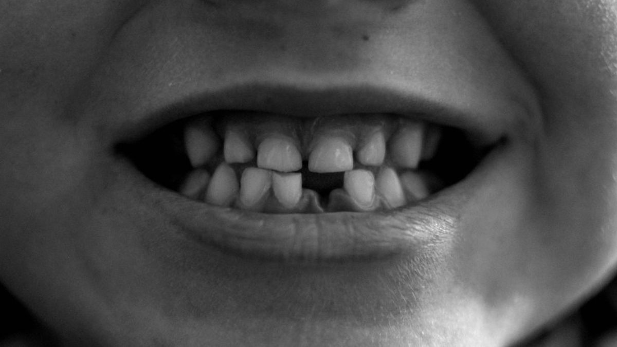 Un anticuerpo, clave para regenerar los dientes perdidos
