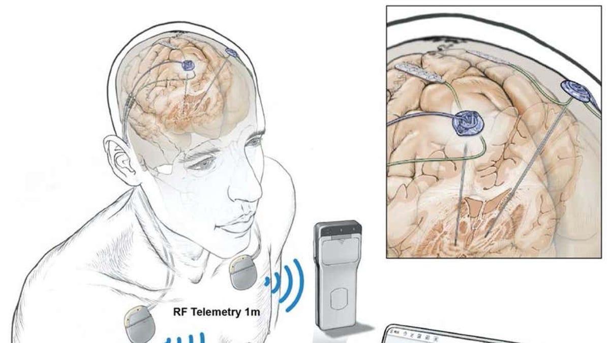 Rastrean la actividad cerebral de personas de forma remota