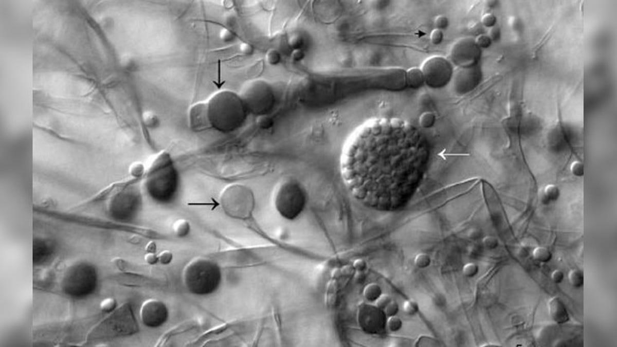 """Qué es el peligroso """"hongo negro"""" para pacientes con Covid"""