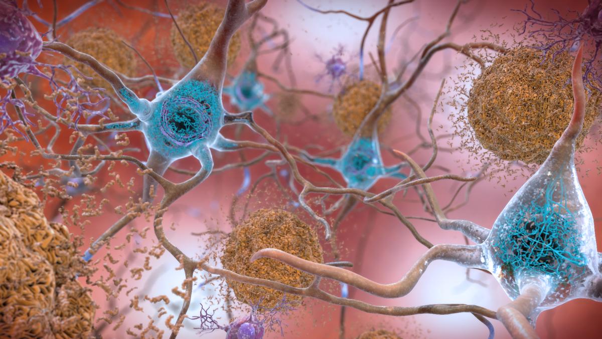 Encuentran hierro y cobre en los cerebros con Alzheimer