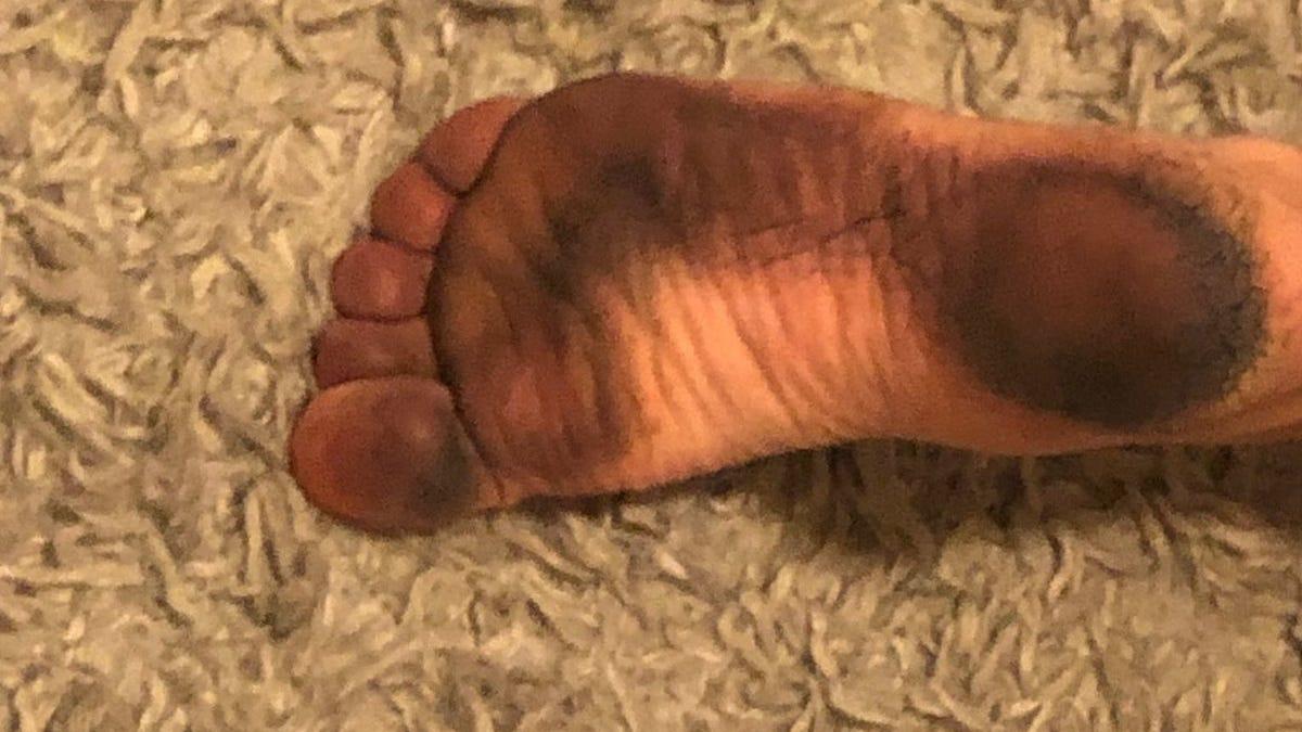 Resuelven el misterio de los pies negros en la playa de Maine