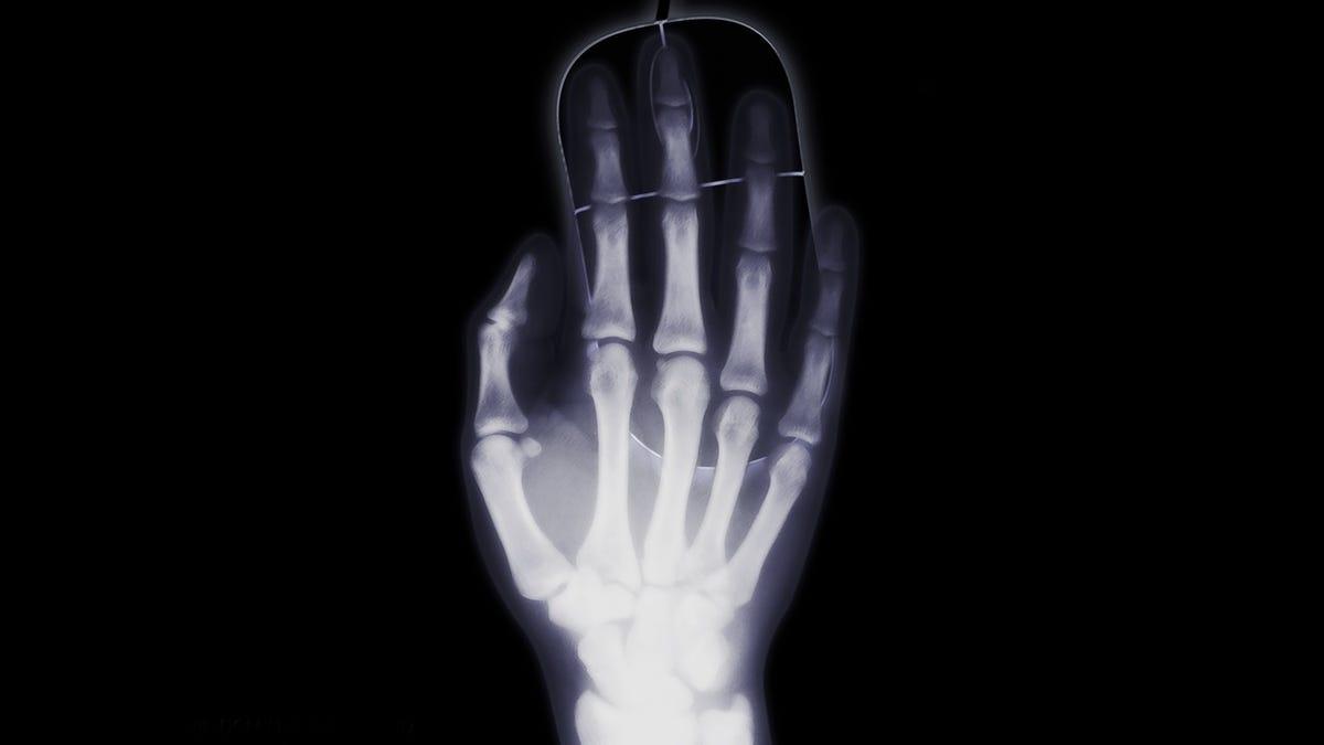 Se construye una máquina de rayos X para no pagar el hospital