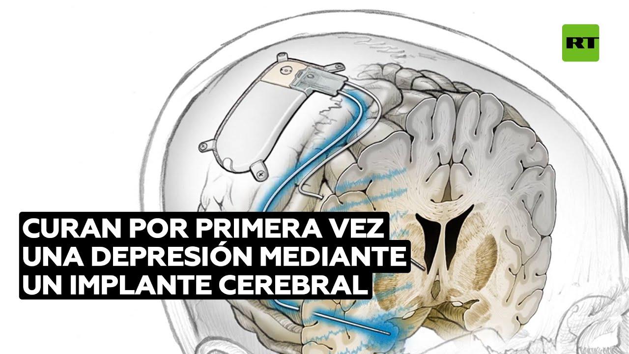 Curan por primera vez una depresión mediante un implante cerebral