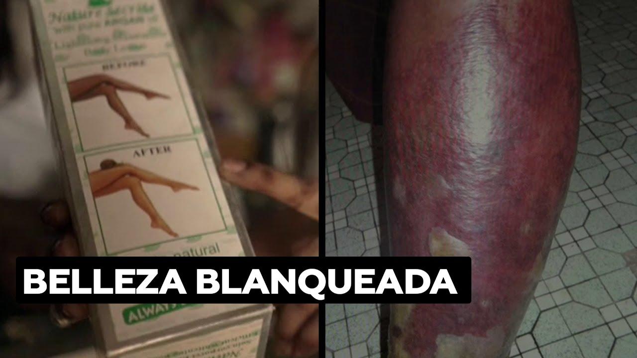 La peligrosa moda de blanquearse la piel que arrasa entre las mujeres senegalesas