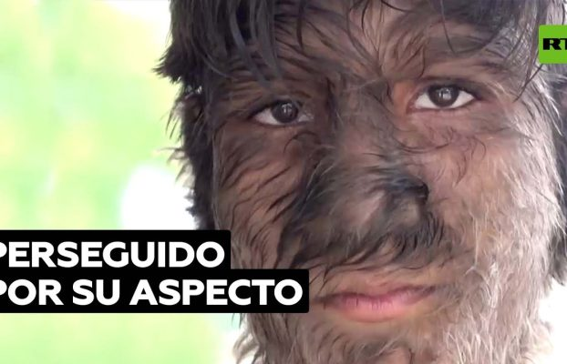 Un joven tiene pelo en todo el cuerpo por una rara enfermedad genética @RT Play en Español